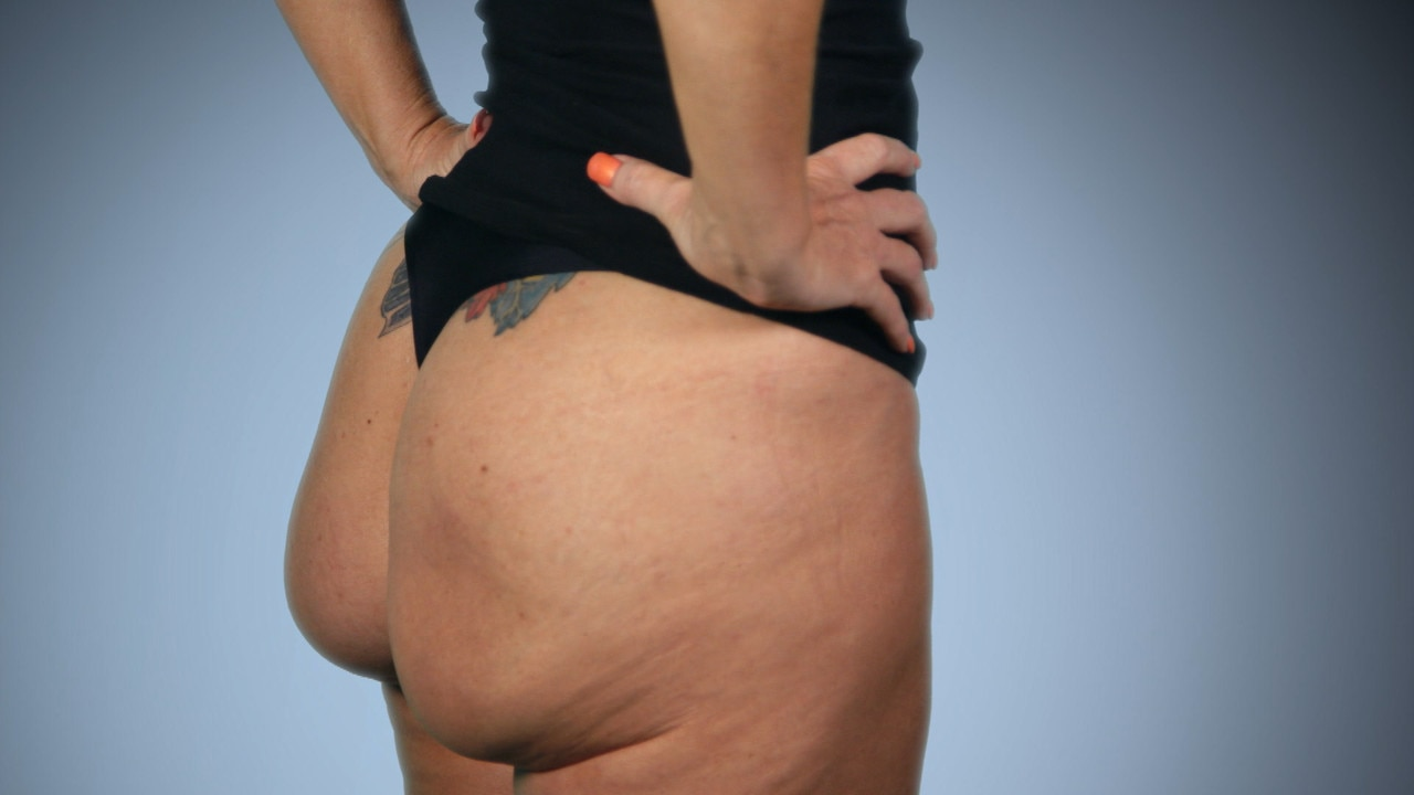 Butt Implants Gone Completely Wrong  E News-3415