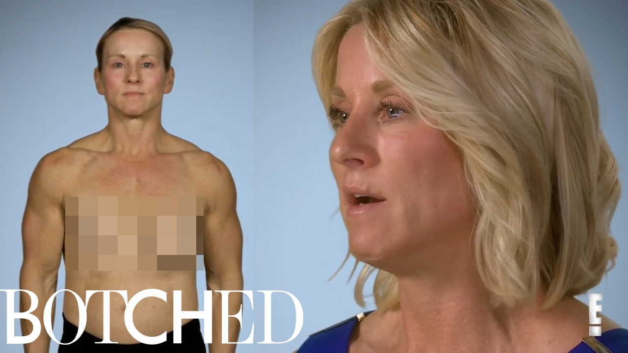 Flipboard Botched Patient Paula Explains How She Lost Her -6787