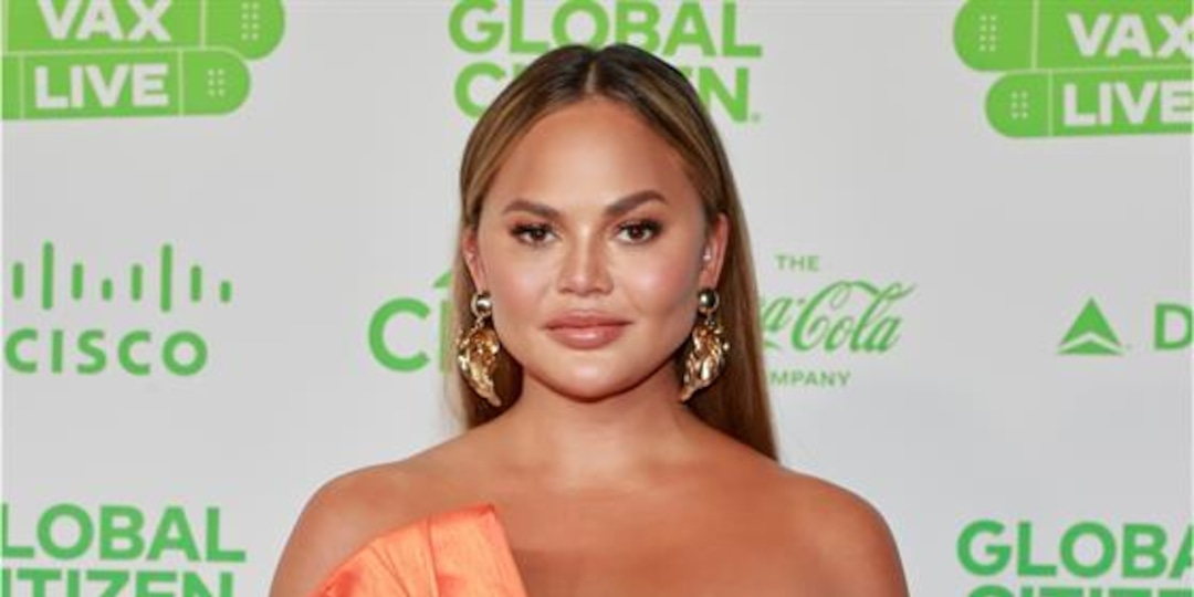 Chrissy Teigen Reveals She Had Fat Removed From Her Cheeks - E! Online.jpg