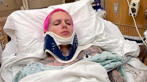 "Jeffree Star Hospitalized After ""Severe"" Car Accident - E! Online"