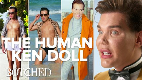 Botched: The Evolution Of Rodrigo The Human Ken Doll