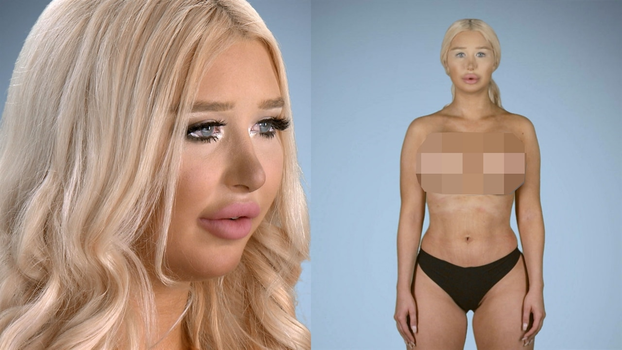 Plastic Surgery Almost Killed Amanda On Botched  E News